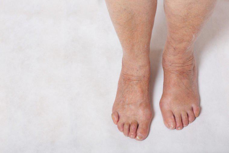 Cơ thể bỗng nhiên bầm tím, nước tiểu đục: Dấu hiệu sớm cảnh báo ung thư